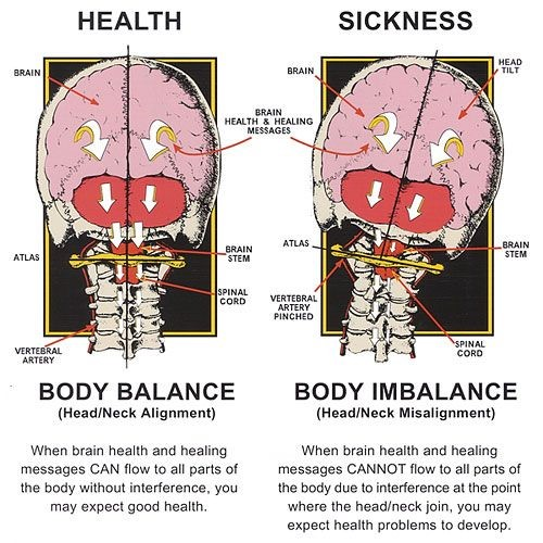 What Is An Upper Cervical Subluxation - BlairChiropractors.com